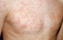 Nổi mẩn đỏ khắp người là bệnh gì?