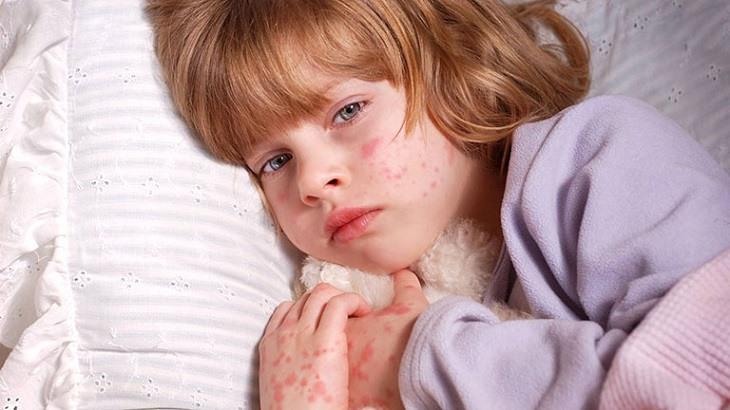 Sớm xác định nguyên nhân gây bệnh để tìm ra hướng điều trị kịp thời