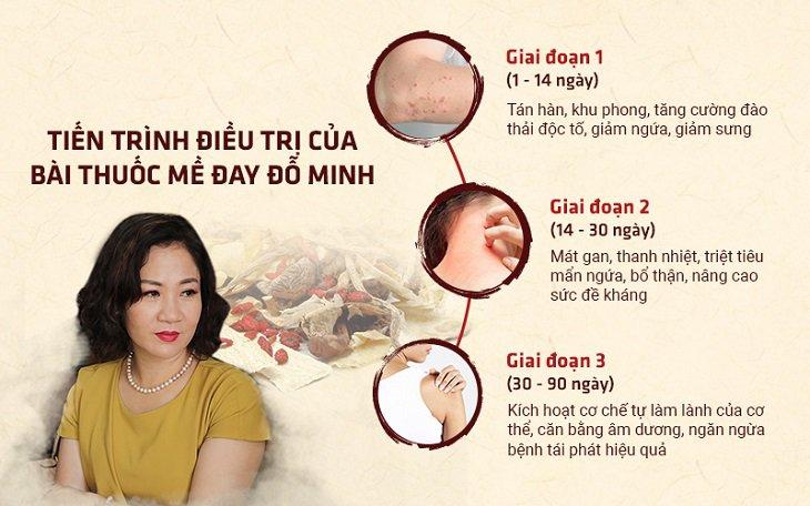 Tiến trình điều trị mề đay sau sinh tại Đỗ Minh Đường