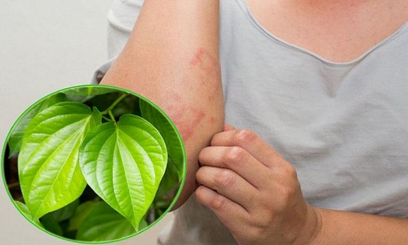 Mẹo chữa mề đay bằng lá trầu không cực đơn giản