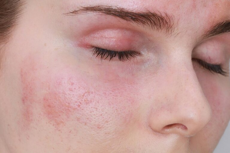 Dị ứng nổi mề đay trên mặt có nguy hiểm không?
