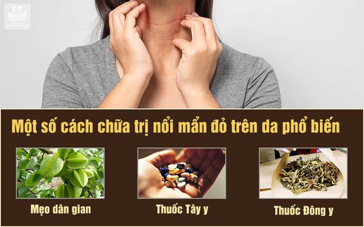 Một số phương pháp chữa bệnh phát ban đỏ
