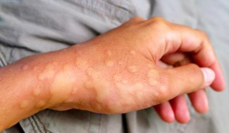 Triệu chứng nổi mẩn đỏ có thể thành cục hoặc mảng như trong hình