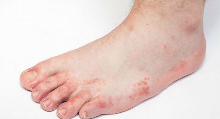 Nổi mẩn đỏ ngứa ở chân là bệnh gì?