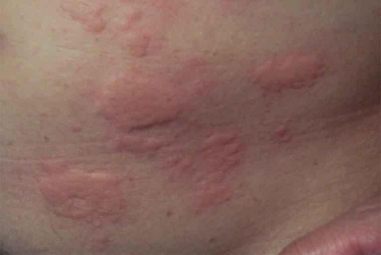 Bệnh mề đay cần được điều trị sớm
