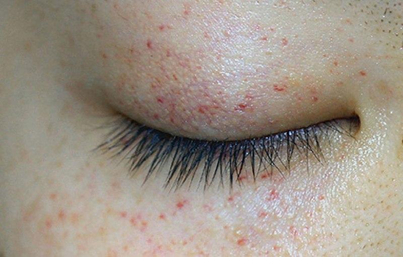 Nổi mẩn đỏ quanh mắt là bệnh gì?