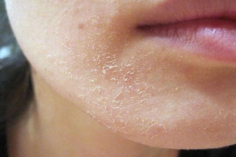 Da mặt khô ngứa mẩn đỏ vì sao