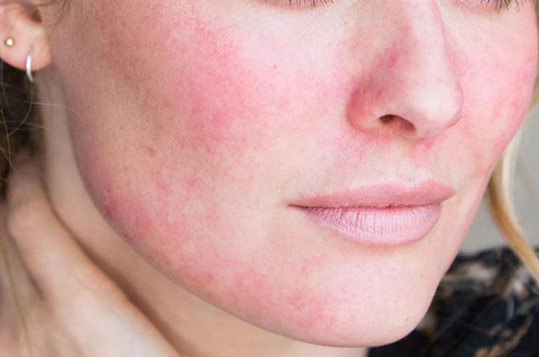 Mặt nổi mẩn đỏ không ngứa là bệnh gì?