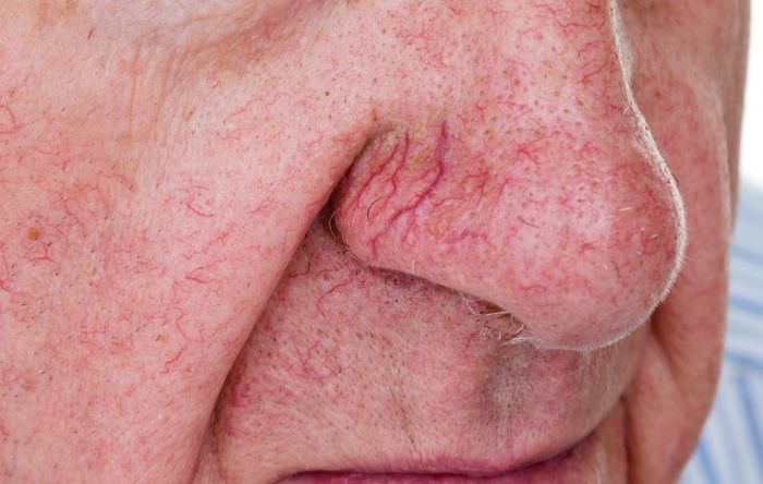 Bệnh giãn mao mạch gây hiện tượng nổi mẩn đỏ trên mặt