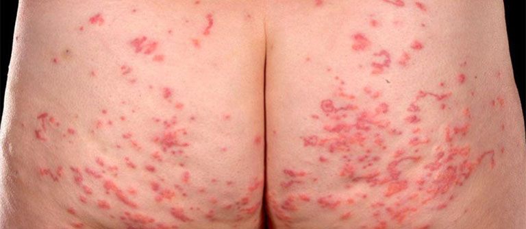 Nổi mẩn ngứa ở mông cần xác định nguyên nhân để đưa ra phương án điều trị