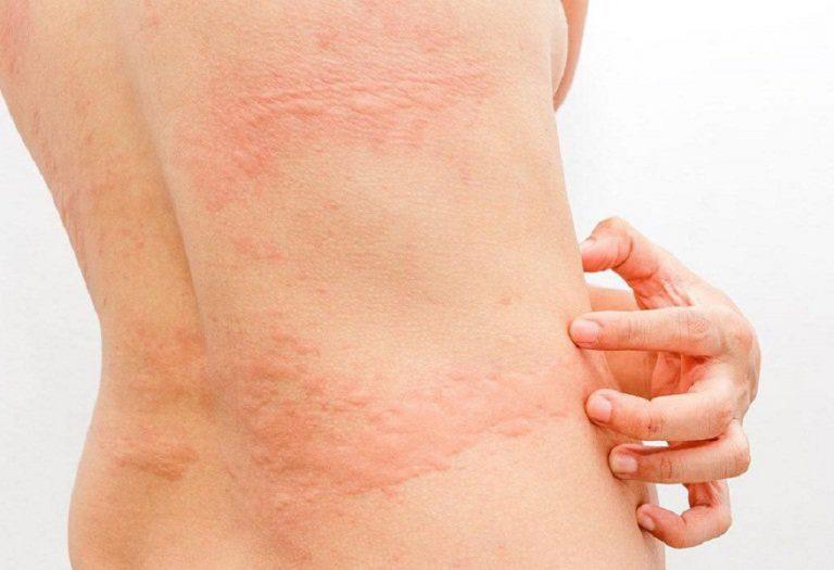 3 tháng đầu phụ nữ dễ bị nổi mẩn do những thay đổi trong cơ thể