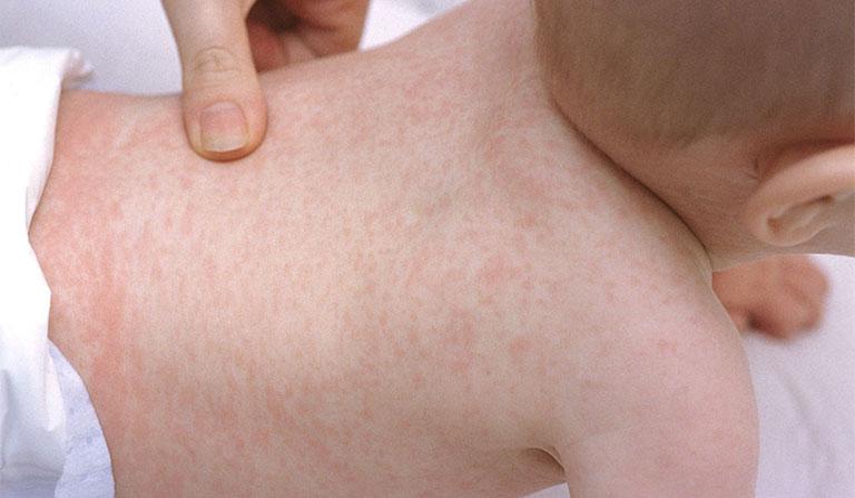 Dị ứng thời tiết có thể gây kích ứng trực tiếp trên da, hình thành hiện tượng phát ban