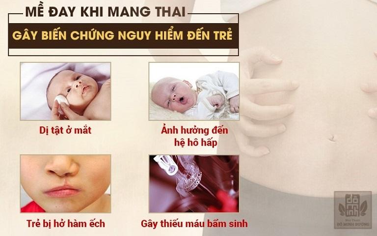 Nổi mề đay khi mang thai tháng cuối có thể gây dị tật ảnh hưởng đến thai nhi