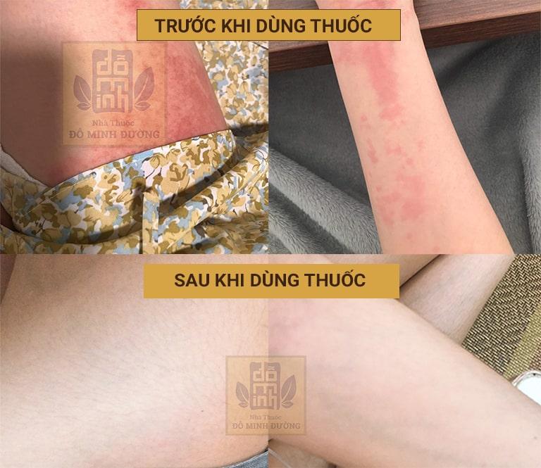 Bệnh nhân cải thiện tình trạng nổi mẩn đỏ do dị ứng thời tiết nhờ Đỗ Minh Đường
